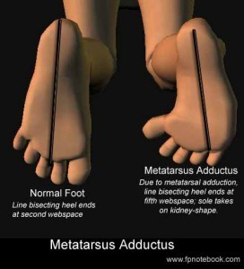 metatarsus adductus classification