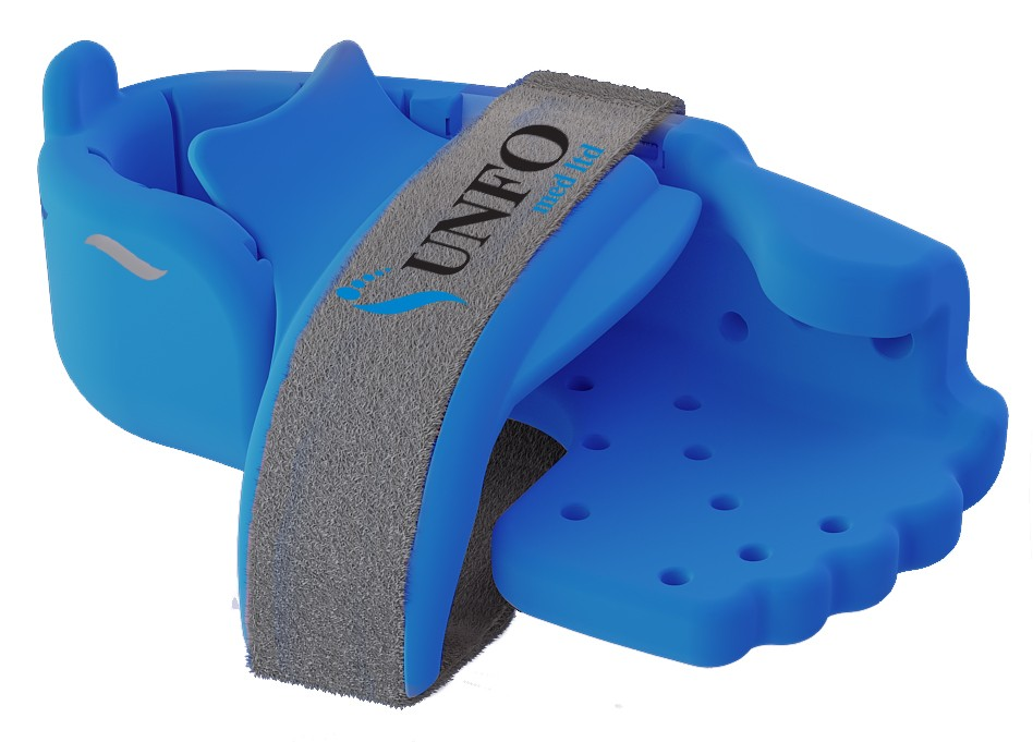 Blue UNFO brace for Metatarsus Adductus treatment