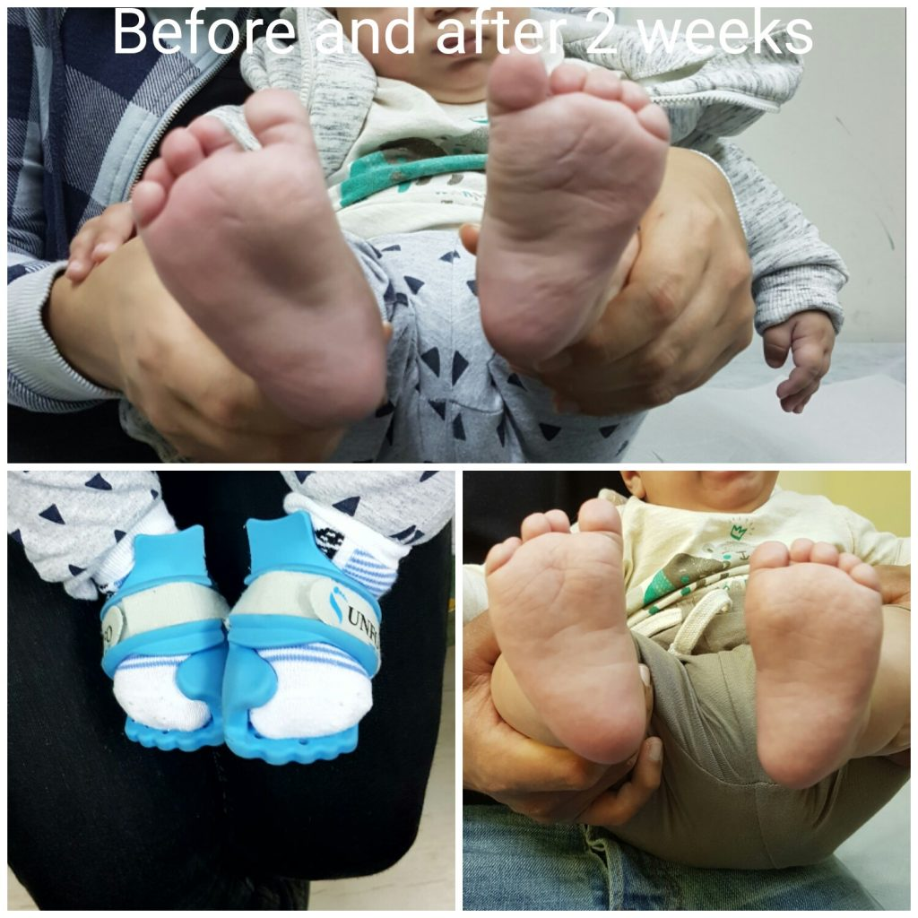 Treatment for metatarsus adductus (Pigeon Toed Toddler) - Correction after 2 weeks