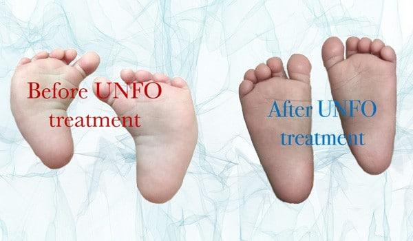 UNFO- Revolutionary Treatment for Metatarsus Adductus ...