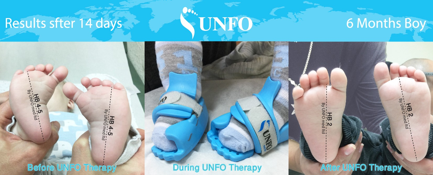 unfo pigeon toed treatment befor after