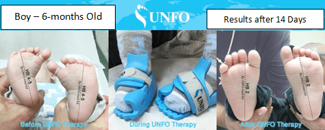 Results of Metatarsus Adductus due to Unfo med sandal